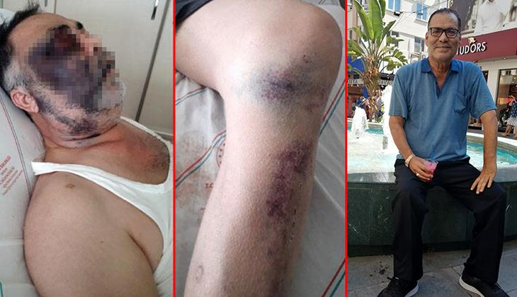 Antalya'da darbedilen yüzde 90 engelli Mümin Kara hayatını kaybetti