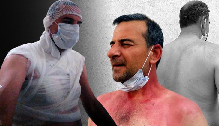 Edirne'de komşu dehşeti! Bir anda neye uğradığını şaşırdı