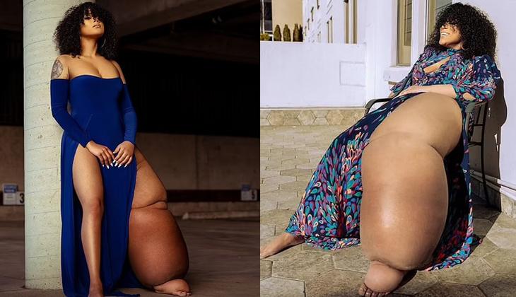 İlham verici bir hikaye | Sol bacağı tam 45 kilo olan model: Mahogany Geter