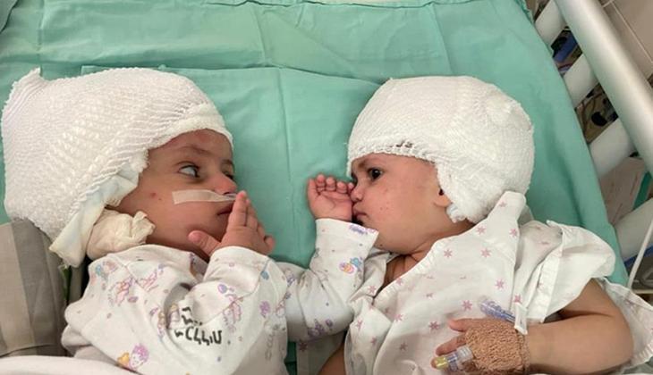 Bir yıldır her saniye birlikteler ama birbirlerine ilk kez baktılar... İkizlerin hayata mucize tutunuşu!