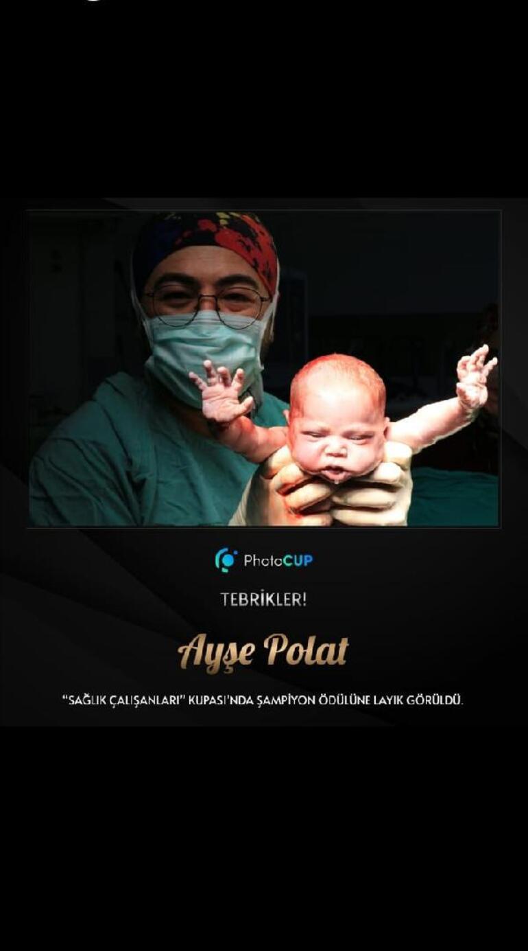 Anestezi teknikeri, Burçak bebeğin fotoğrafıyla birinci oldu